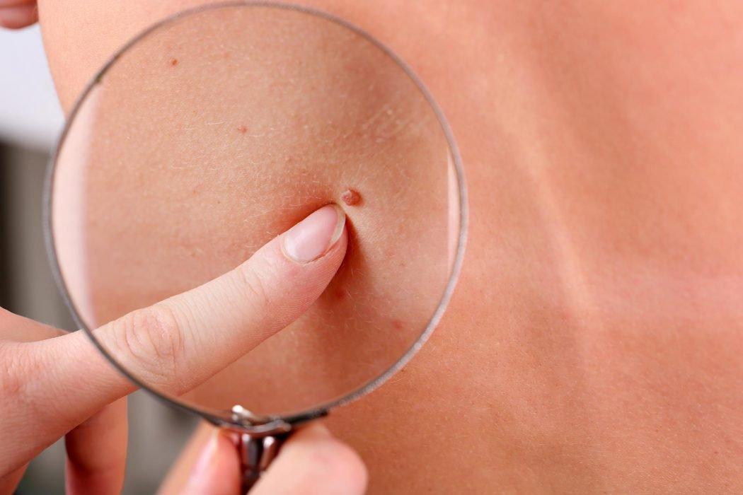 как избавиться от папиломо- вирусной инфекции