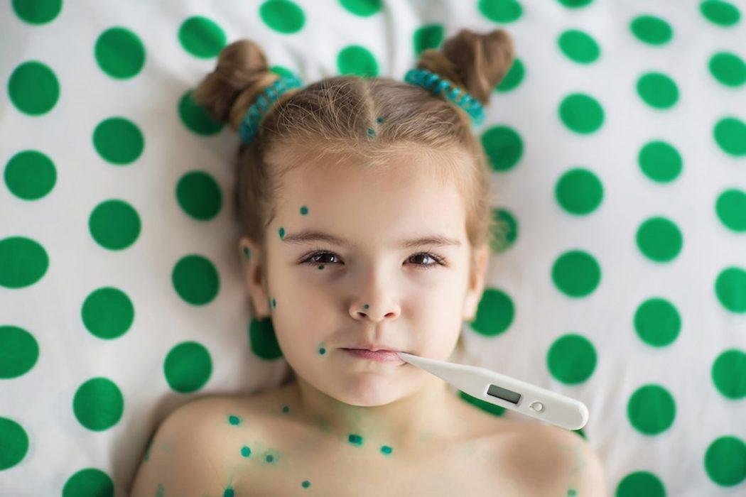 Ветрянка у ребенка: симптомы и лечение