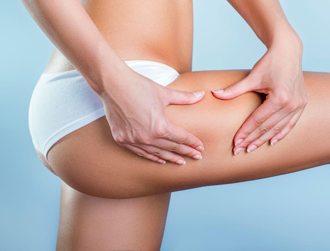 Проверенные способы борьбы с целлюлитом на попе и ногах