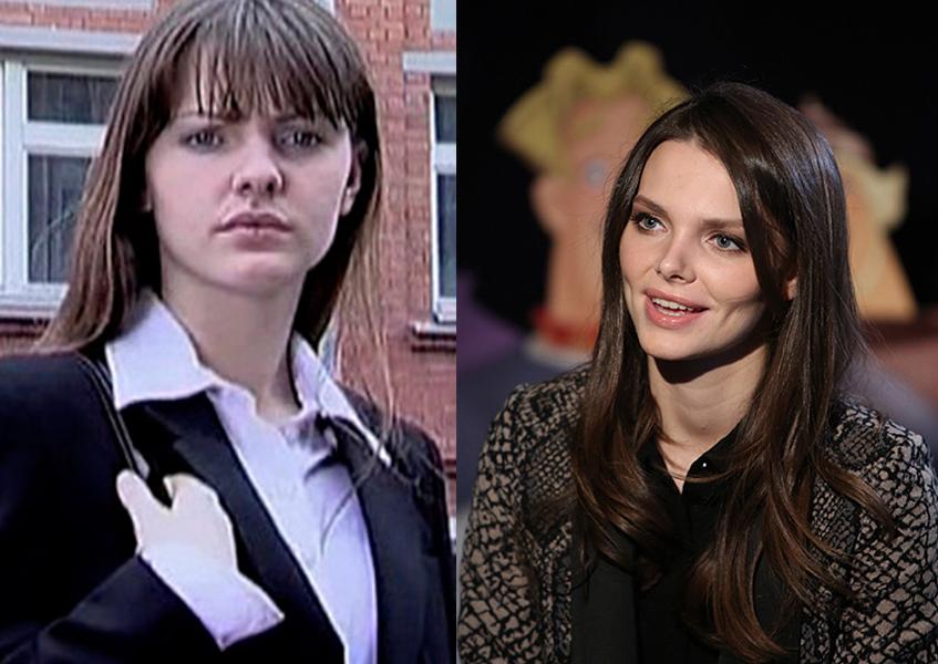 Елизавета Боярская до и после пластики
