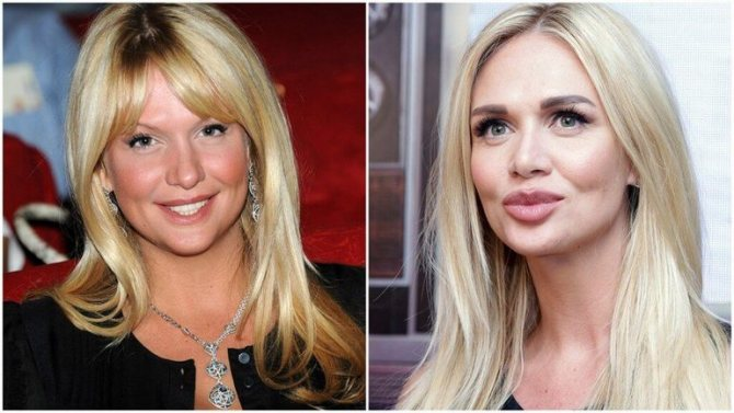 Виктория Лопырева до и после пластики