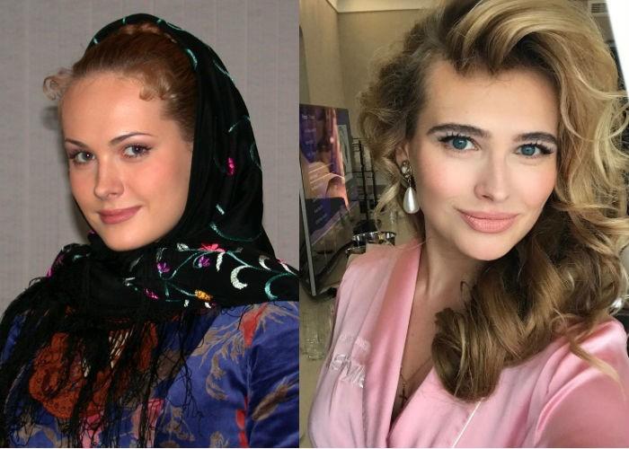 https://umnica-krasavica.ru/wp-content/uploads/2018/07/aktrisa-anna-gorshkova-do-i-posle-plastiki-gub-i-lica.jpg
