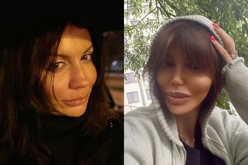 Алиса Казьмина до и после пластики
