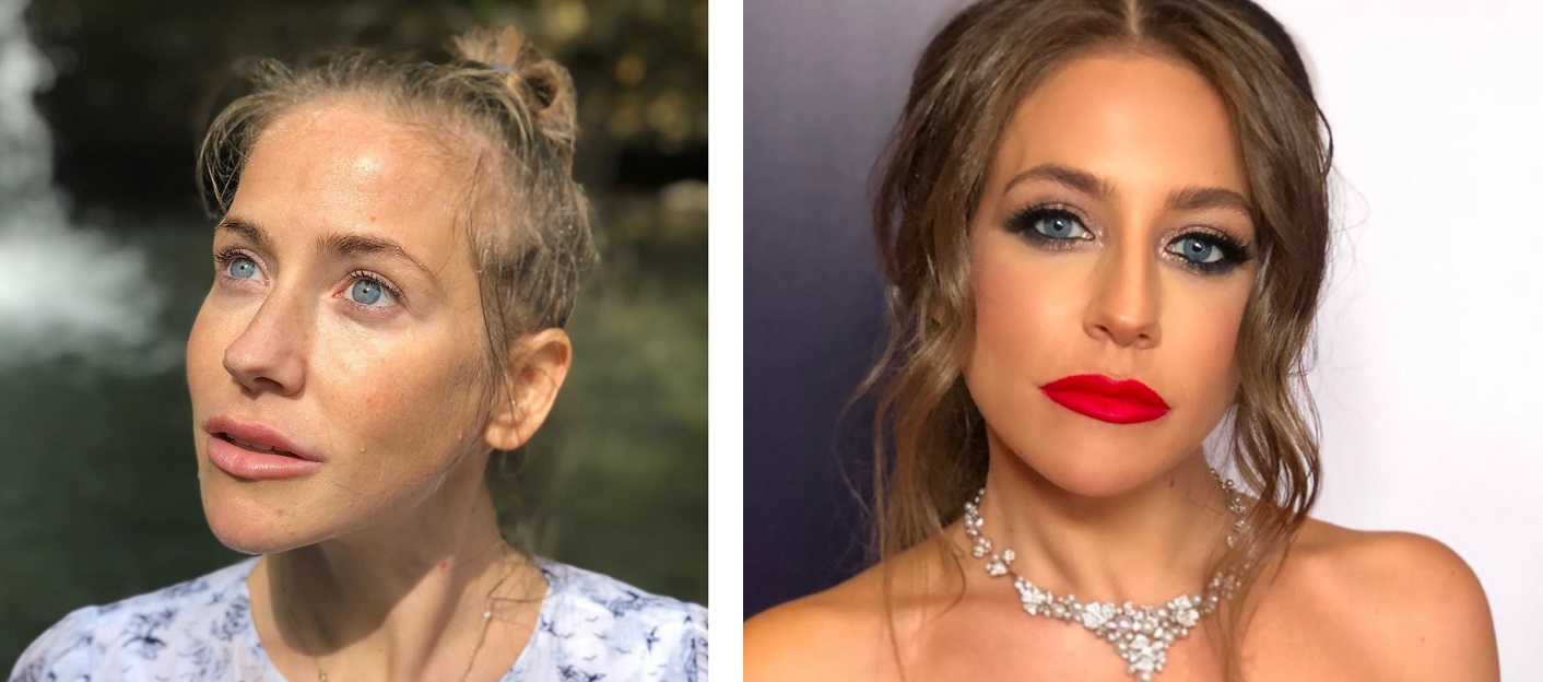Юлия Барановская до и после пластики