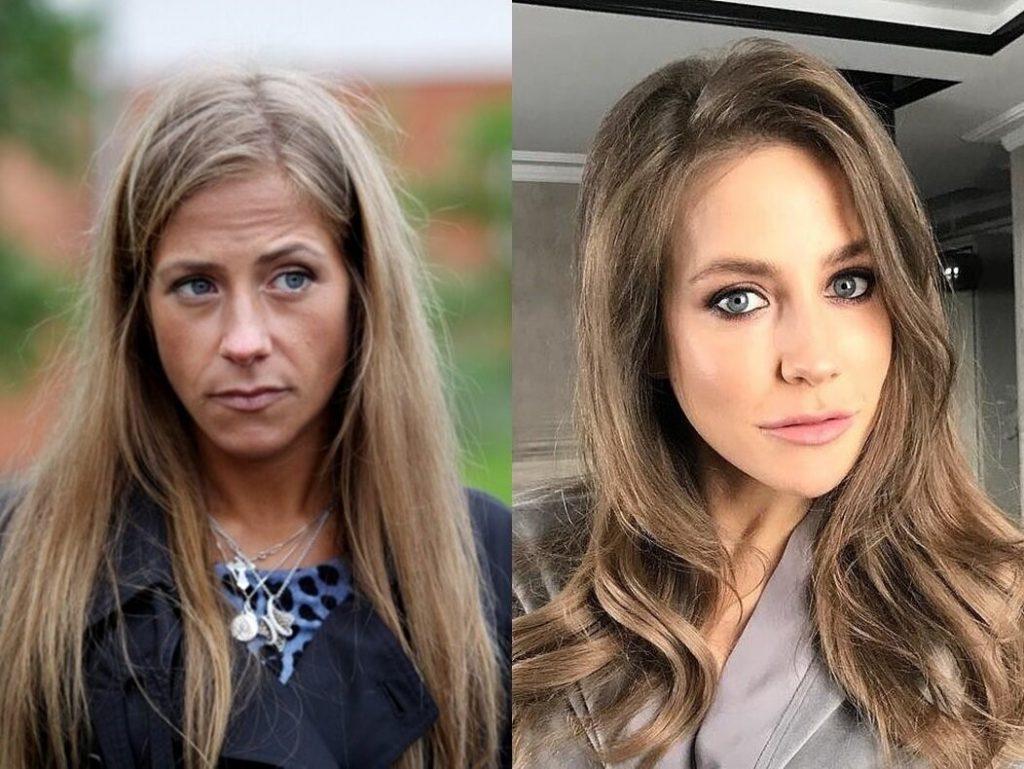 Юлия Барановская до и после пластических операций