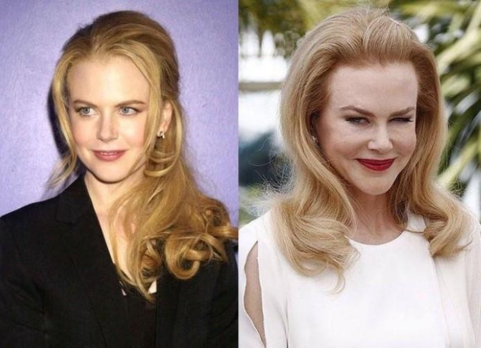 Описание: Николь кидман губы. Знаменитости до и после пластики