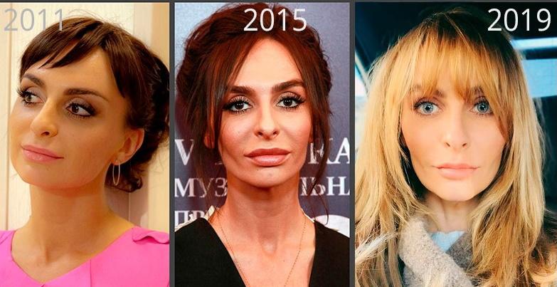 фото до и после предполагаемой пластической операции