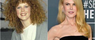 Николь Кидман до и после пластики
