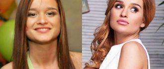 Ксения Бородина до и после пластики