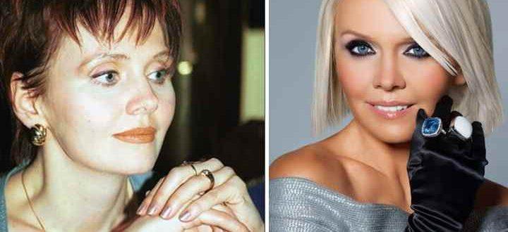Валерия до и после пластики