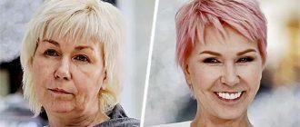 Ксения Стриж до и после пластики