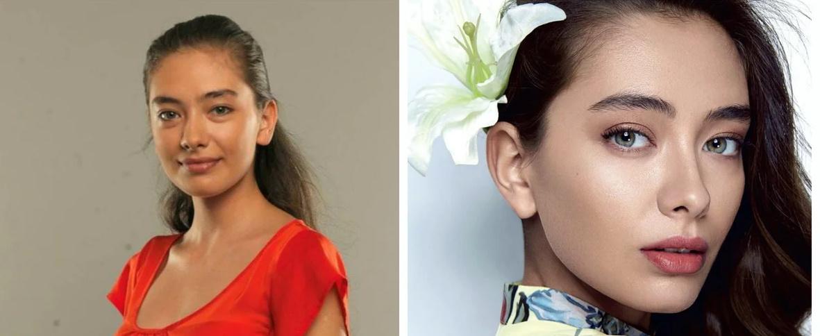 Неслихан Атагюль до и после пластики