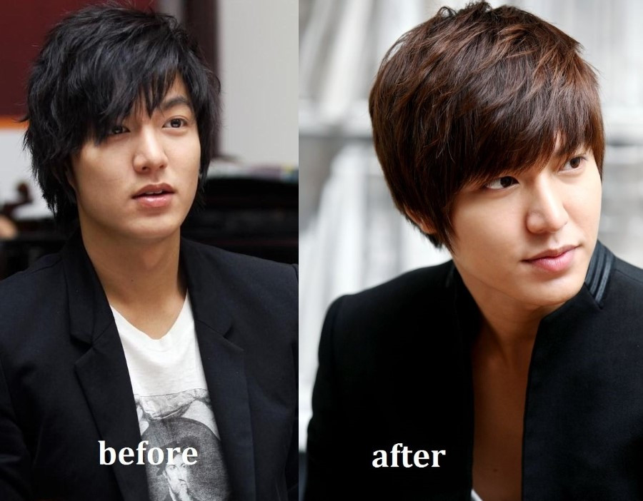 Ли Мин Хо до и после пластики