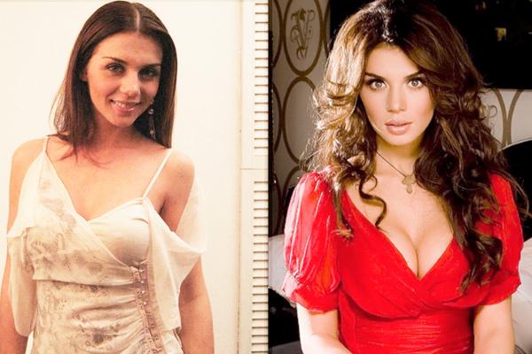 Анна Седокова до и после пластики