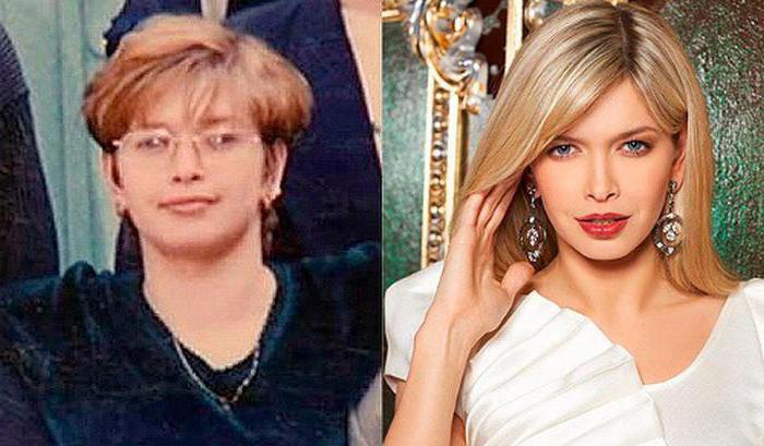 Вера Брежнева до и после пластики