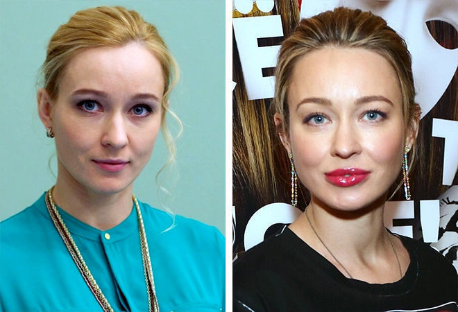 Анастасия Панина до и после пластики