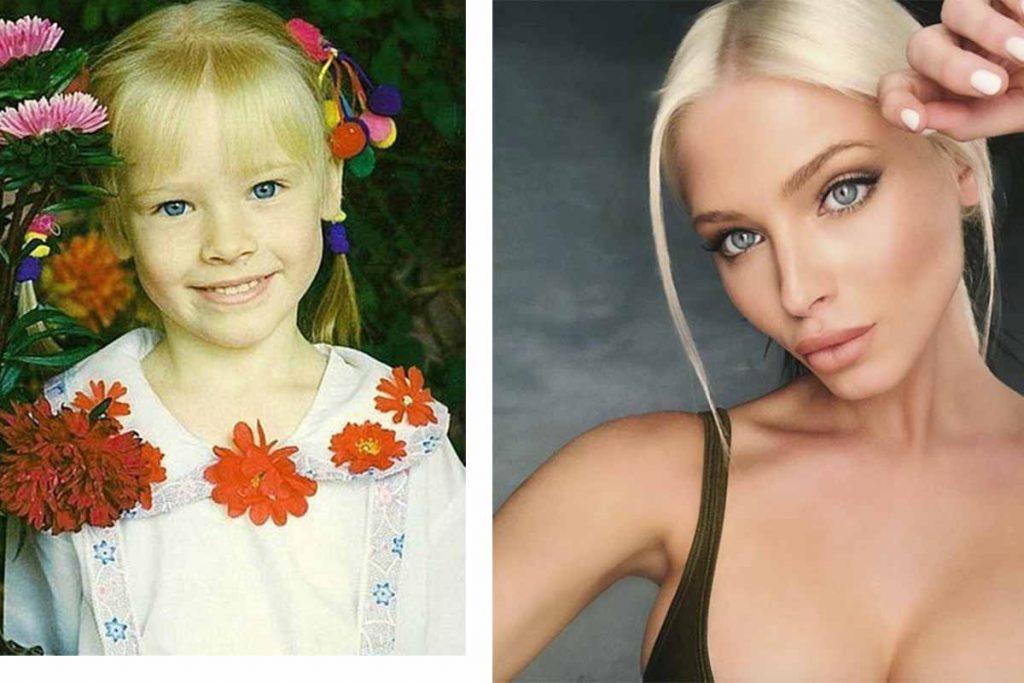 Алена Шишкова до и после пластики