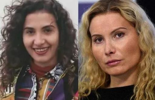 Этери Тутберидзе до и после пластики