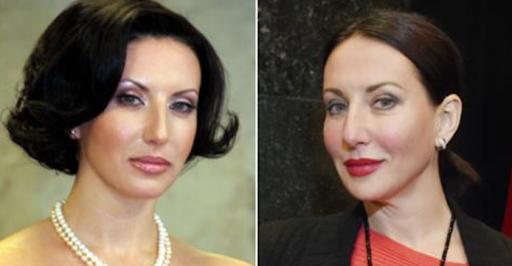 Алика Смехова до и после пластики