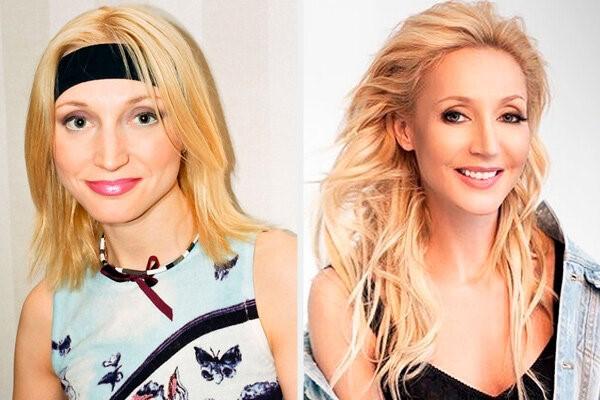 Кристина Орбакайте, до и после пластики. А ведь певица отрицает многие хирургические вмешательства, но они видны на фото.