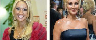 Лера Кудрявцева до и после пластики