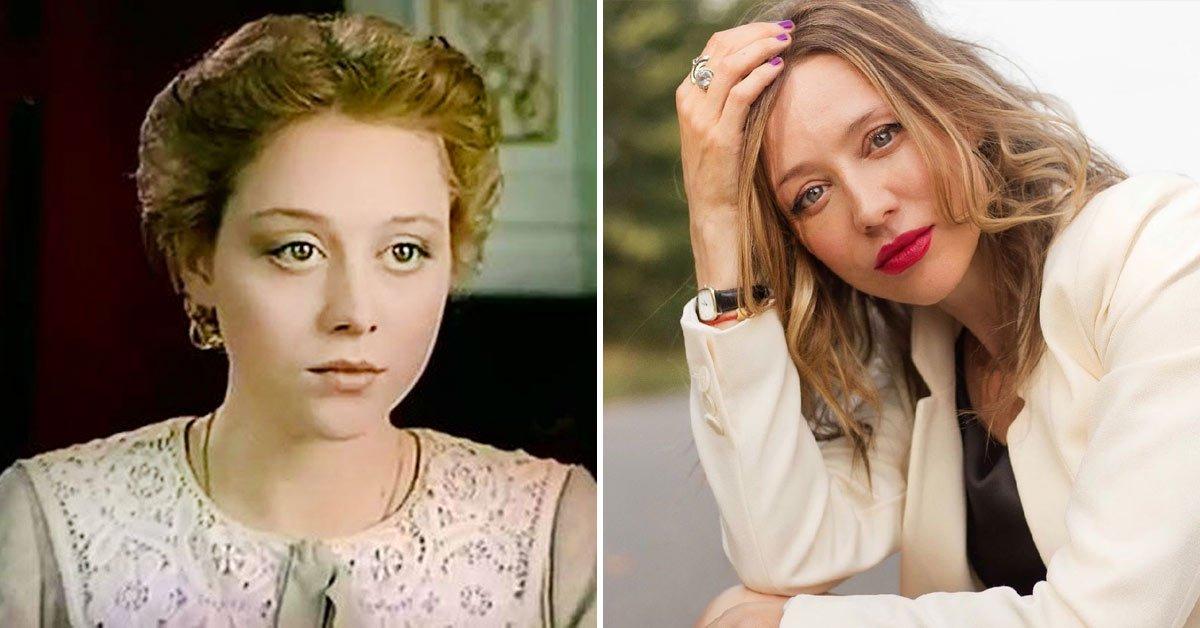 Дарья Волга до и после пластики
