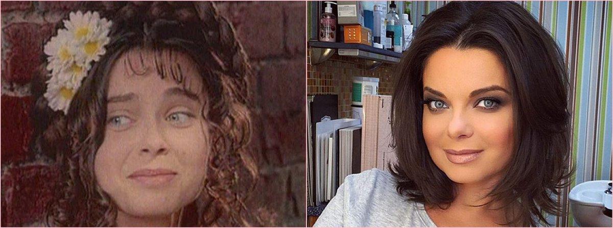 Наташа Королева до и после пластики