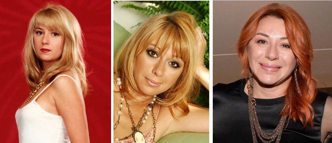 Алена Апина до и после пластики