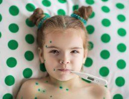 Ветрянка у ребенка: симптомы и лечение, инкубационный период